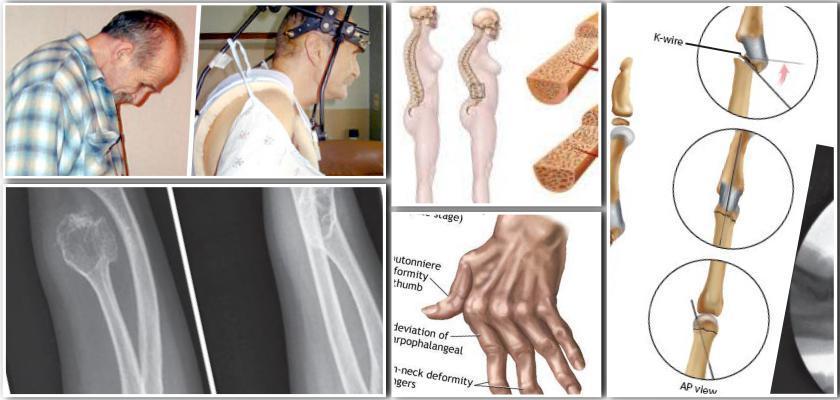 Kemik Erimesini Önlemede Doğal Yöntemler
