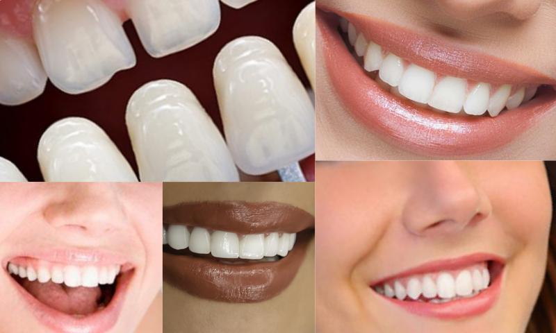 Gülüş Estetiği İle Ortamlarda Rahatça Gülümseyin