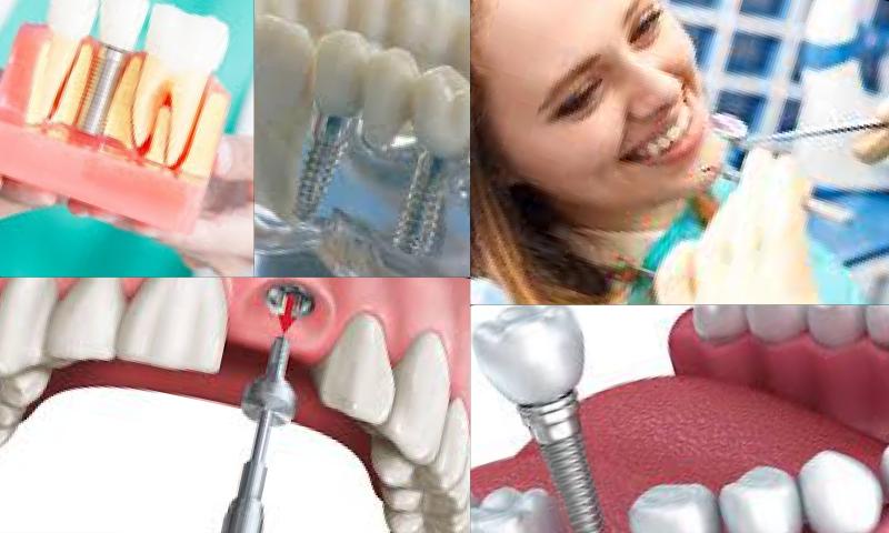 Dental İmplant İle Gülüşünüzü Tasarlıyoruz