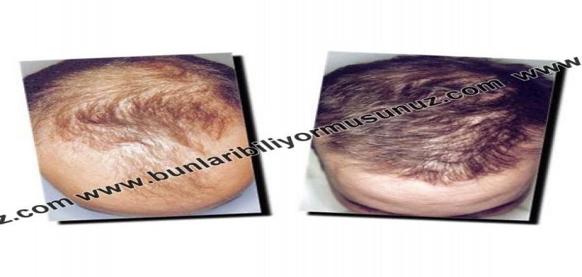 Saçlarımın Dökülmesini Nasıl Önlerim?